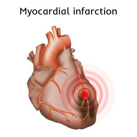 心肌炎(圖片來源:網上圖片)