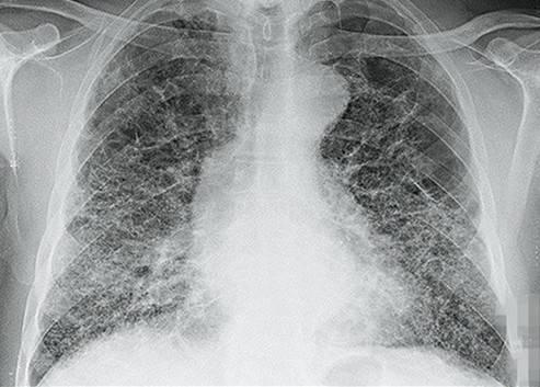 【新冠肺炎】有證據指患新冠肺炎 構成多個器官長期損害!