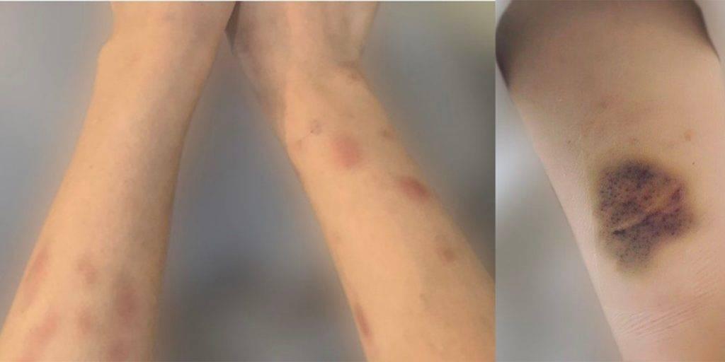 日媒《週刊文春》公開A小姐的受害圖。(圖片來源:《週刊文春》)